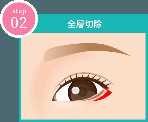 step02 「全層切除」イメージ画像