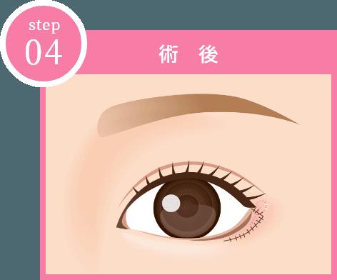 step04 「術後」イメージ画像
