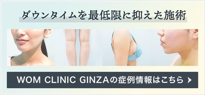 ダウンタイムを最低限に抑えた施術 WOM CLINIC GINZAの症例情報はこちら