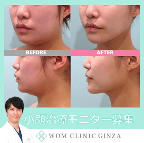 「小顔治療」参考画像