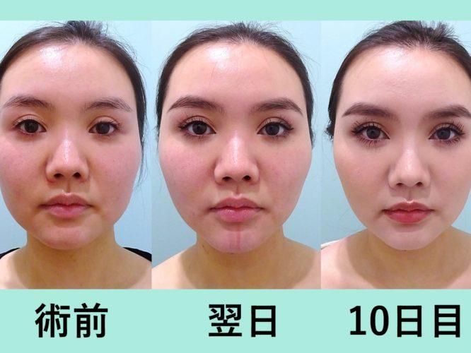 小顔 脂肪吸引 バッカルファット 糸リフト ダウンタイム