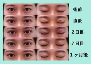 『目の上脂肪取りとの組み合わせ「二重埋没4点法」』の画像
