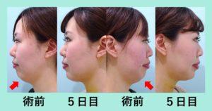 『効果抜群!!顎先ボトックスと「小顔マイクロリポ法」』の画像
