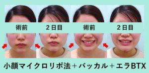 『ダウンタイムの短い「小顔組み合わせ治療」』の画像