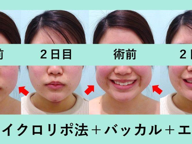 バッカルファット 小顔 脂肪吸引 ダウンタイム