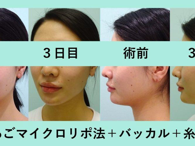 バッカルファット リフトアップ 小顔 脂肪吸引 ダウンタイム
