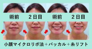 『恐るべし!本人も戸惑うほどの衝撃的な変化!「小顔フルセット治療」』の画像
