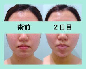 『術後2日目「小顔アプリ顔負け」の劇的変化!!』の画像