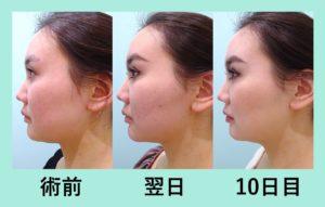 『本当に腫れの少ない「小顔組み合わせ治療」』の画像