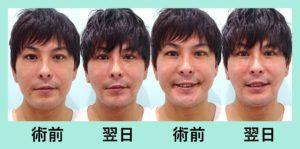 『男性にも人気、施術翌日でも腫れほぼなし!!「小顔組み合わせ治療」』の画像