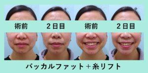 『顔の横幅を減らす!「バッカルファット+糸リフトの組み合わせ治療」』の画像