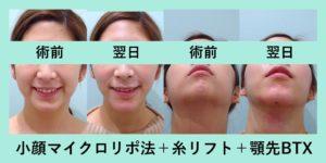 『オペ翌日から衝撃的な細さに!「小顔組み合わせ治療」』の画像