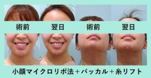 『施術翌日に鏡を見てビックリ!!「小顔組み合わせ治療」』の画像