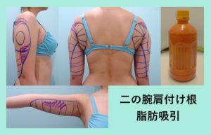 『圧倒的にダウンタイムの短い「二の腕肩付け根脂肪吸引」』の画像
