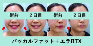 『たった10分で小顔に!「バッカルファット治療」』の画像