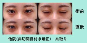 『非切開目付き矯正の修正治療』の画像