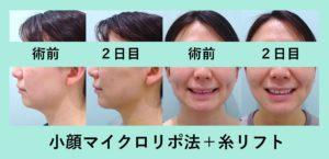 『たるみ・もたつきにも効果的「小顔組み合わせ治療」』の画像