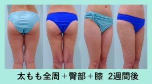 『綺麗な足を作るこだわりのデザイン「太もも脂肪吸引」』の画像