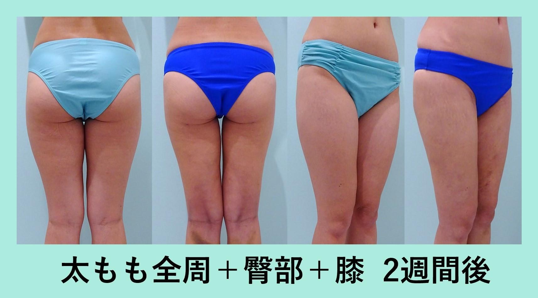 太もも ベイザー脂肪吸引 ダウンタイム