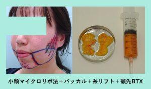 『施術翌日、フェイスライン激変、別人レベルに変化 「小顔組み合わせ治療」』の画像