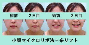 『弛み気味の方は糸リフトが必要「小顔組み合わせ治療」』の画像