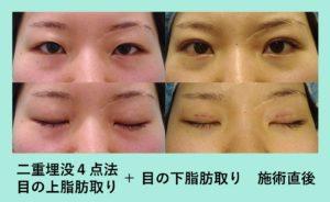 『圧倒的に腫れの少ない「目の上脂肪取り+二重埋没4点法」』の画像