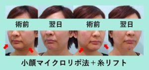 『30才を超えたら糸の併用が必要です「小顔組み合わせ治療」』の画像