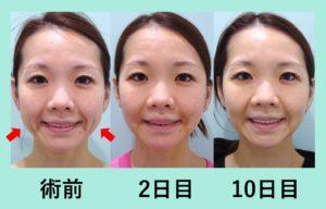 『糸リフト単独よりも効果的「小顔組み合わせ治療」』の画像
