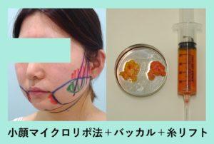 『翌日別人!ものすごい変化!「小顔組み合わせ治療」』の画像