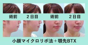 『横顔美人を作る方法「小顔マイクロリポ法+顎先BTX」』の画像