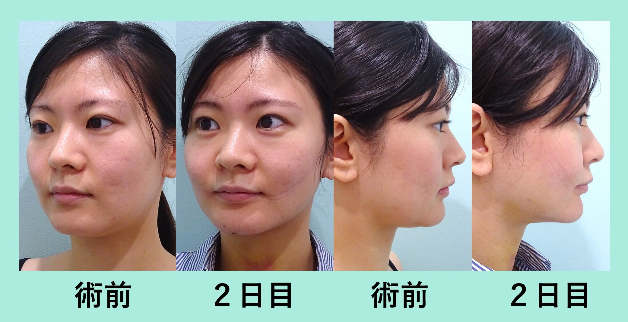 小顔 脂肪吸引 ダウンタイム