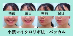 『施術翌日『あれ、痩せた?』と言われる程度「小顔組み合わせ治療」』の画像