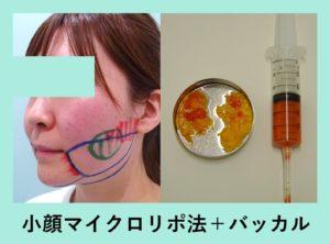 『糸リフトなしでも良い経過です「小顔組み合わせ治療」』の画像