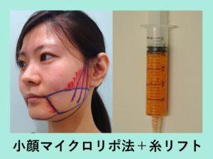 『顔の印象変わります!「小顔組み合わせ治療」』の画像