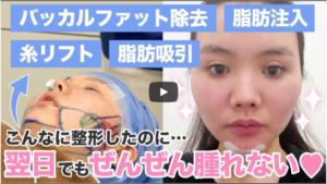 『美容医療口コミサイト「トリビュー」さんにて密着取材していただきました!』の画像