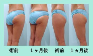 『脂肪は捨てずに有効活用「コンデンスリッチ豊胸」』の画像