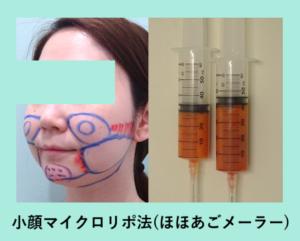 『がっつり吸引! ほほ+あご下+メーラー「小顔マイクロリポ法」』の画像