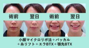 『シュッとして若返りました!「小顔組み合わせ治療」』の画像