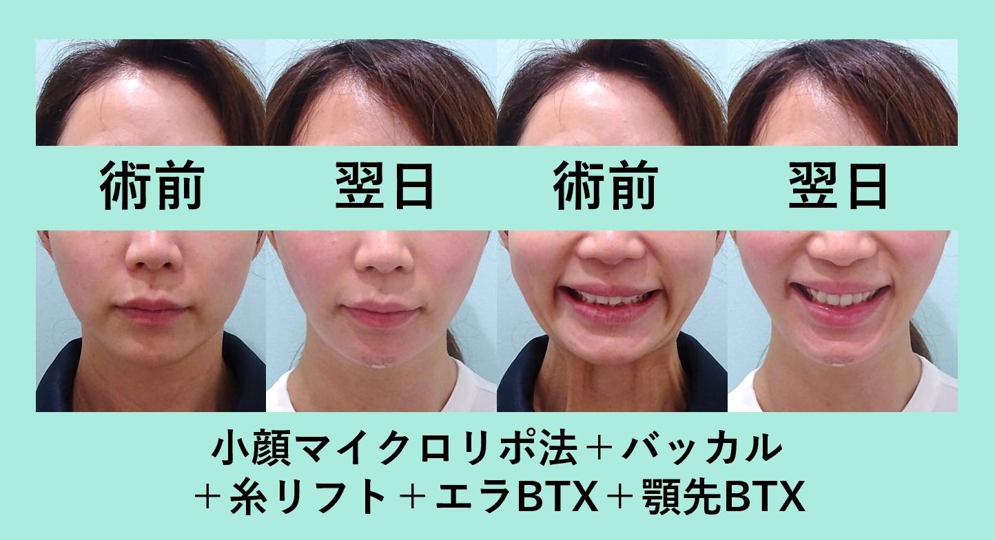 小顔 脂肪吸引 バッカルファット たるみ ダウンタイム