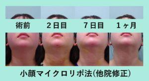 『他院修正でも内出血なし!「小顔マイクロリポ法」』の画像
