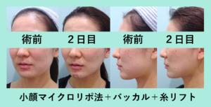 『下ぶくれ顔からすっきり顔に!「小顔組み合わせ治療」』の画像