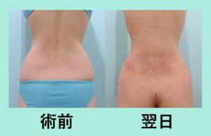 『がっつりクビレを作る!内出血なし!「腰の脂肪吸引」』の画像