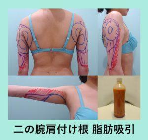 『内出血最小限・翌日からほっそり!「二の腕肩付け根の脂肪吸引」』の画像