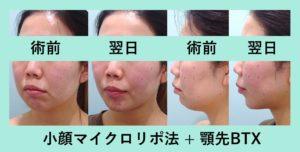 『翌日の凄まじい変化、こりゃ凄い!!「小顔組み合わせ治療」』の画像