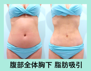 『合成レベル!? 奇跡のビフォーアフター「腹部の脂肪吸引」』の画像