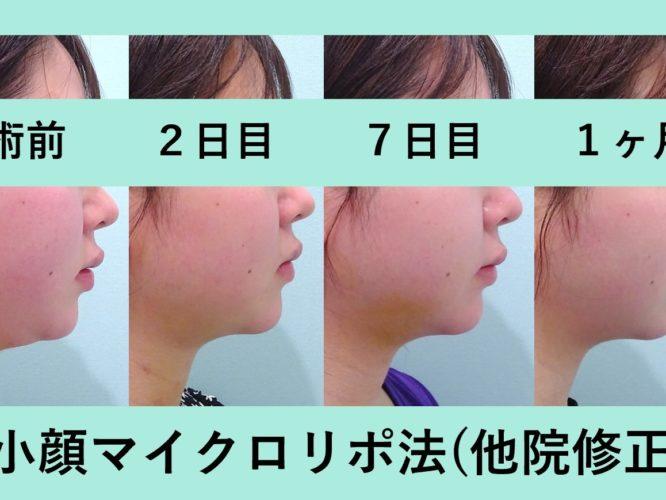 小顔 脂肪吸引 他院修正