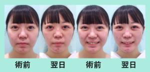 『ほほ+あご下+メーラーの3部位で翌日劇的変化「小顔マイクロリポ法」』の画像