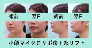 『顔の縦幅が短くなる!?「小顔組み合わせ治療」』の画像