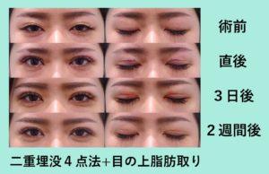 『眠そうな目をパッチリに!「二重組み合わせ治療」』の画像
