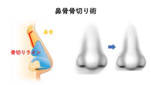 鼻骨骨切り幅寄せ術、鼻尖形成術、鼻尖縮小術、耳介軟骨移植、失敗、他院修正、鼻中隔延長術
